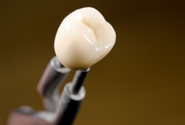 Do Dental Crowns Require Special Care?