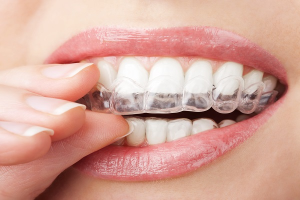 Does Invisalign Cause Pain?