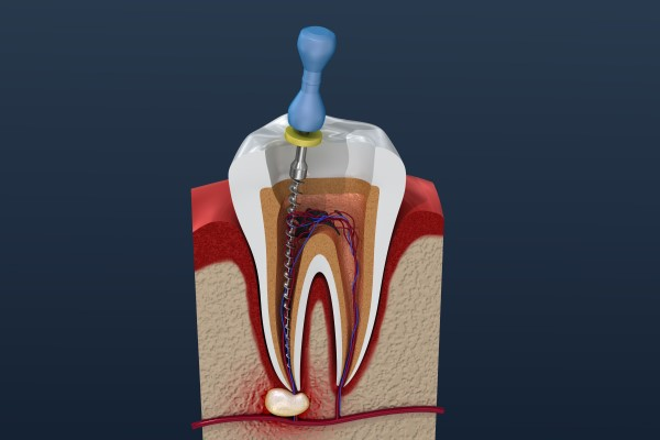 What To Expect From Your Endodontist During A Root Canal